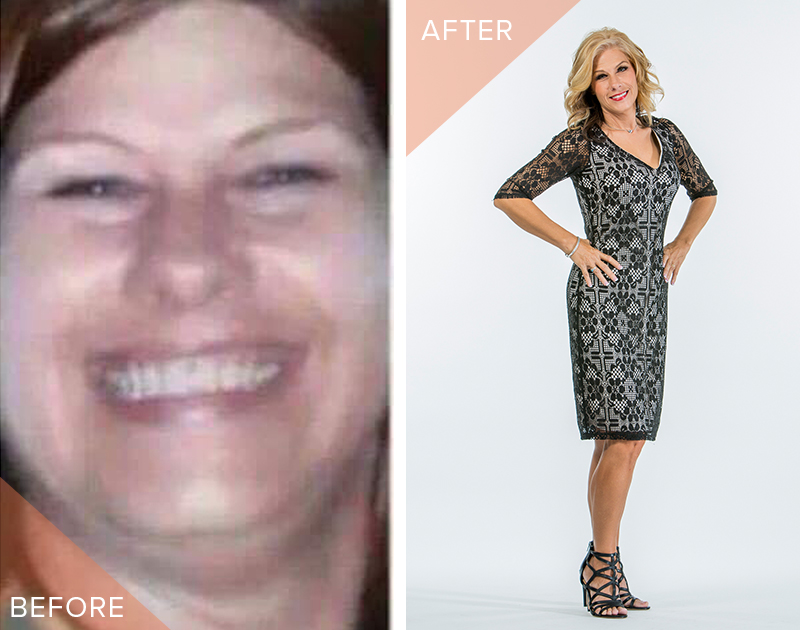 weight loss before and after truvision reviews
